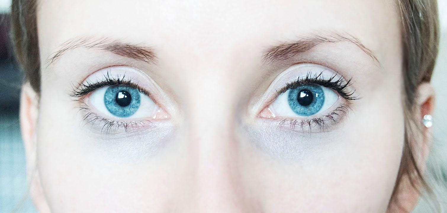 Bli kvitt mørke ringer under øynene