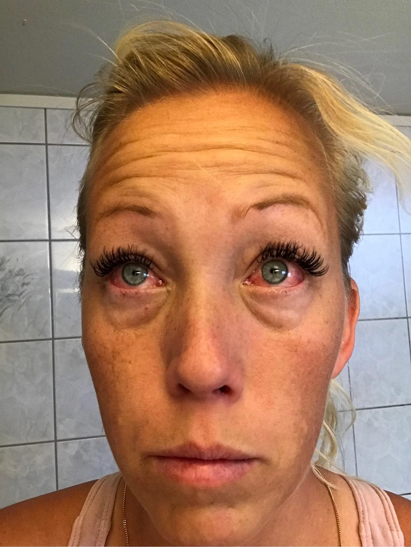 Allergi 😩🔫