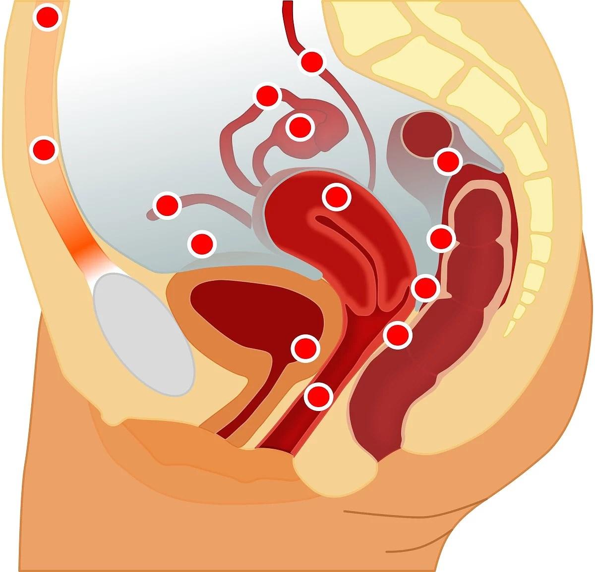 Låt oss prata om Endometrios!