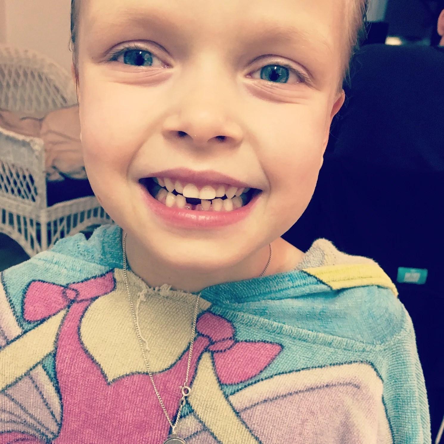 Tappat tand