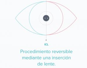 ventajas ICL
