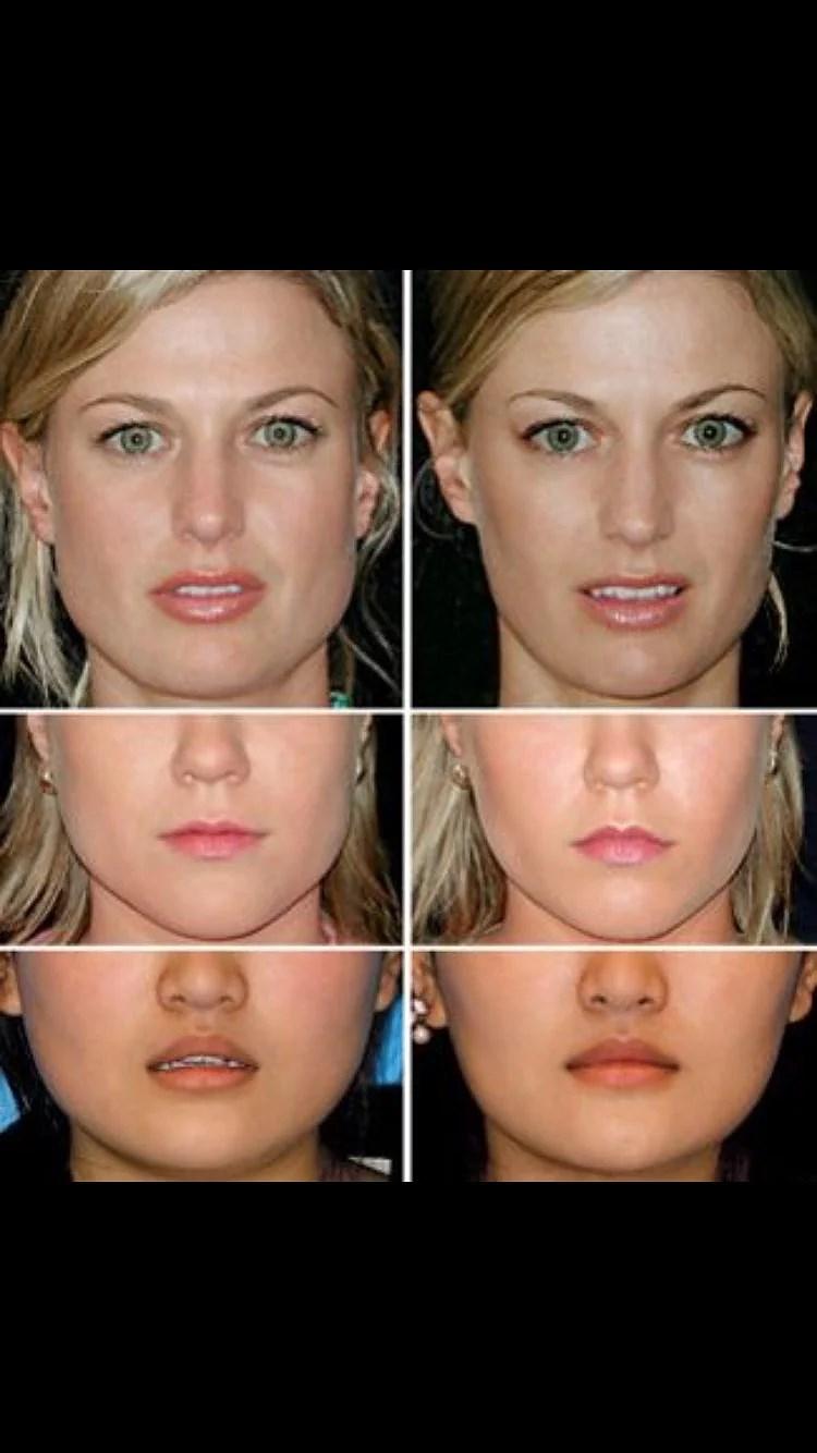 Botox käke