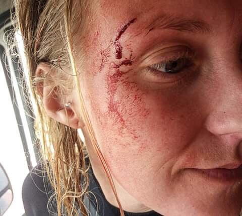 Onlylifeweknow surfer girl getting hurt fail accident blood