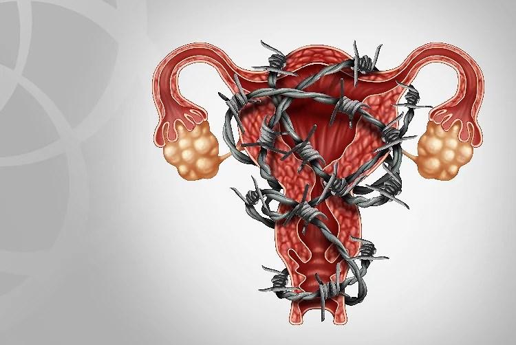 En dold sjukdom - Endometrios Awarness Month