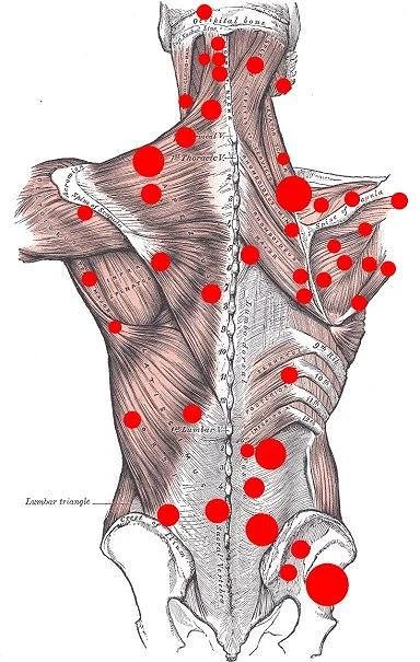 knutar i ryggen