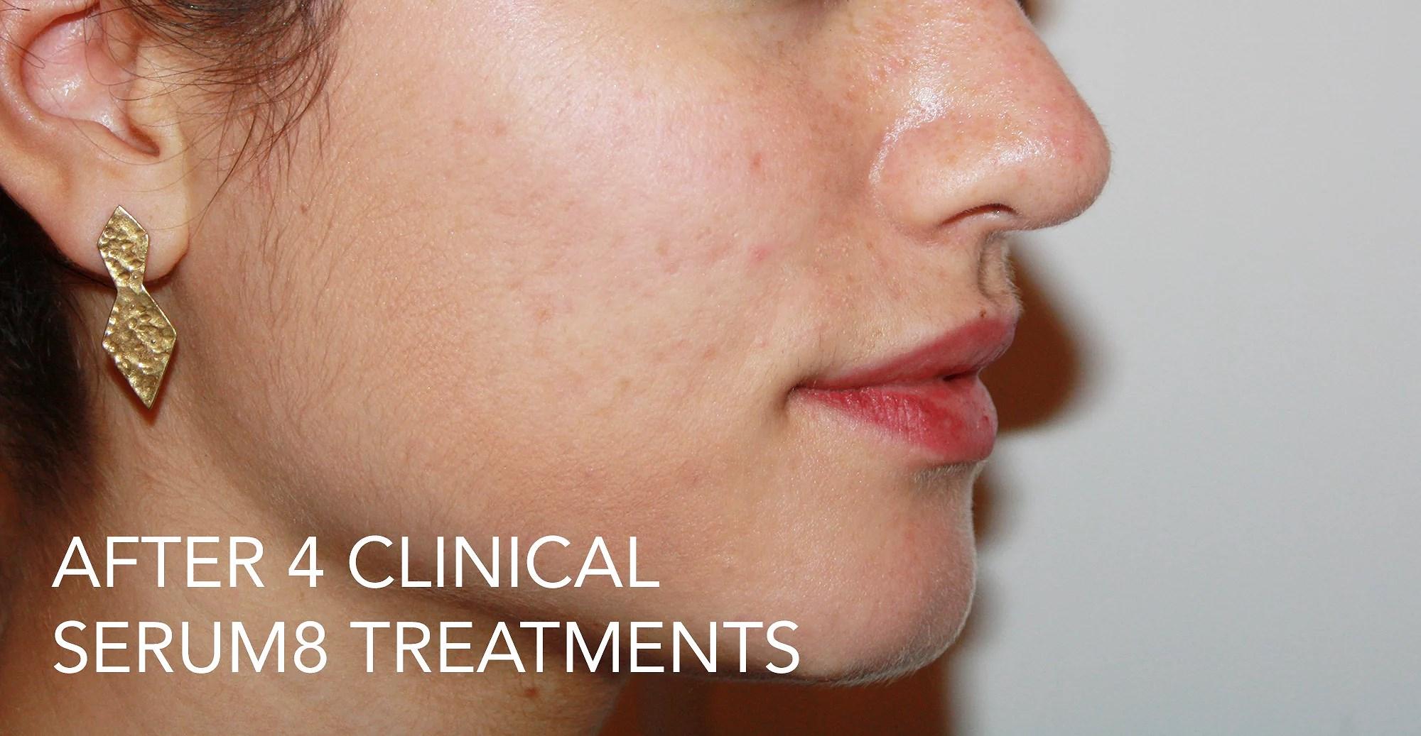 ilirida efter 4 klinik behan. med serum8