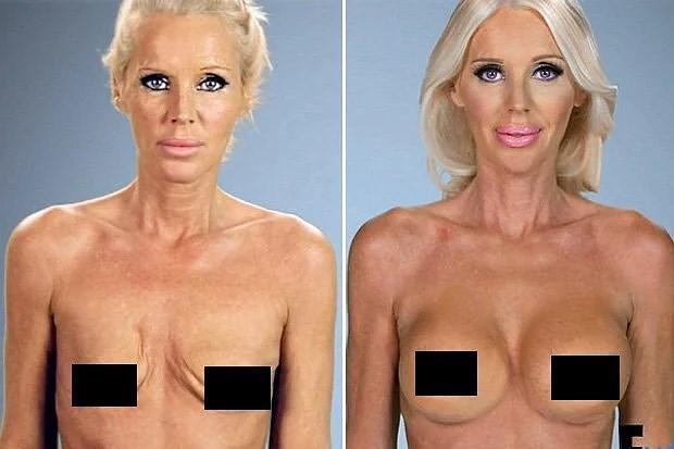 bröstoperation före och efter