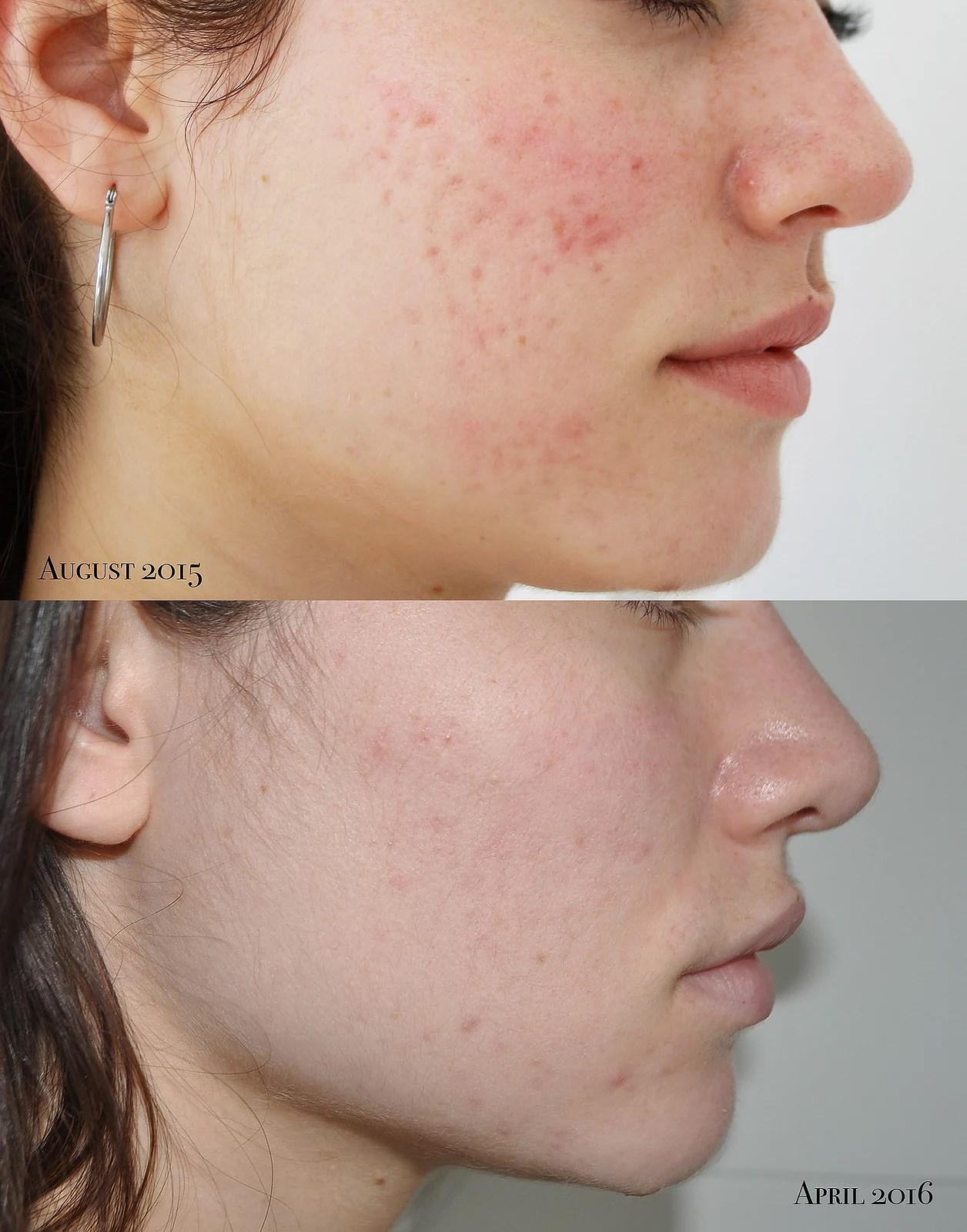ilirida serum8 klinikbehandlinger akne ar dermaroller