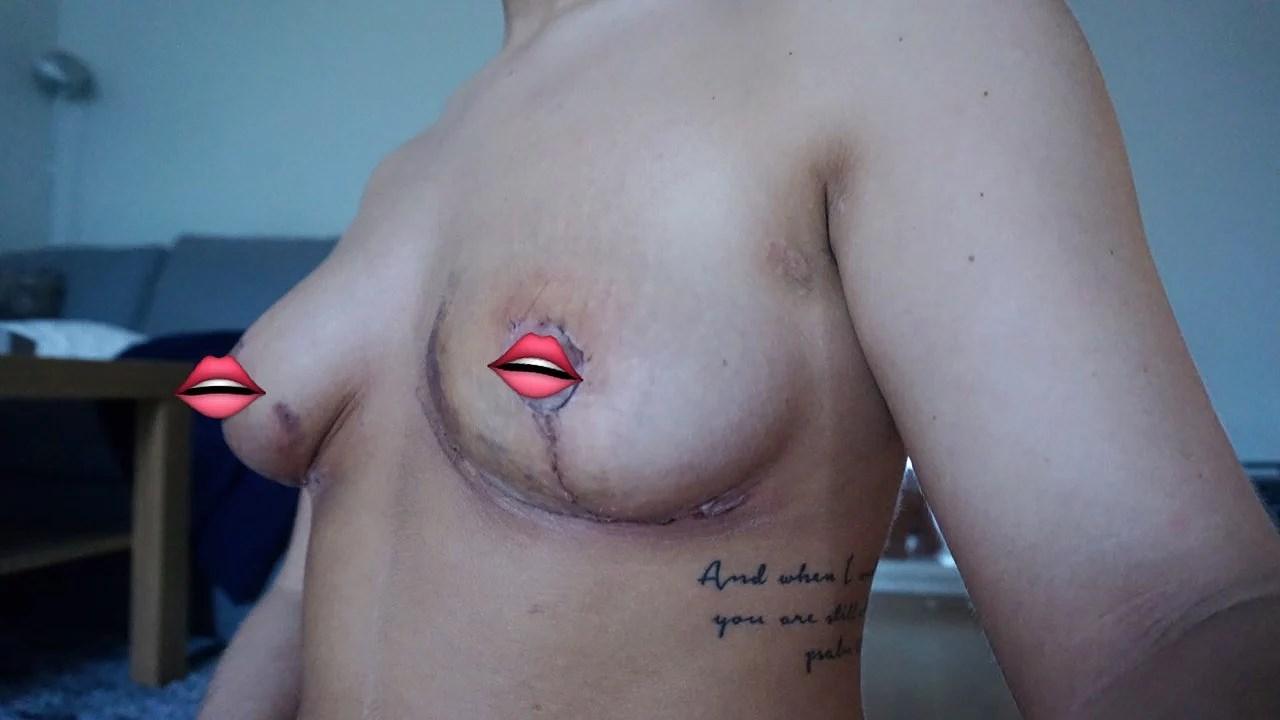 Bröst update - utan tejp