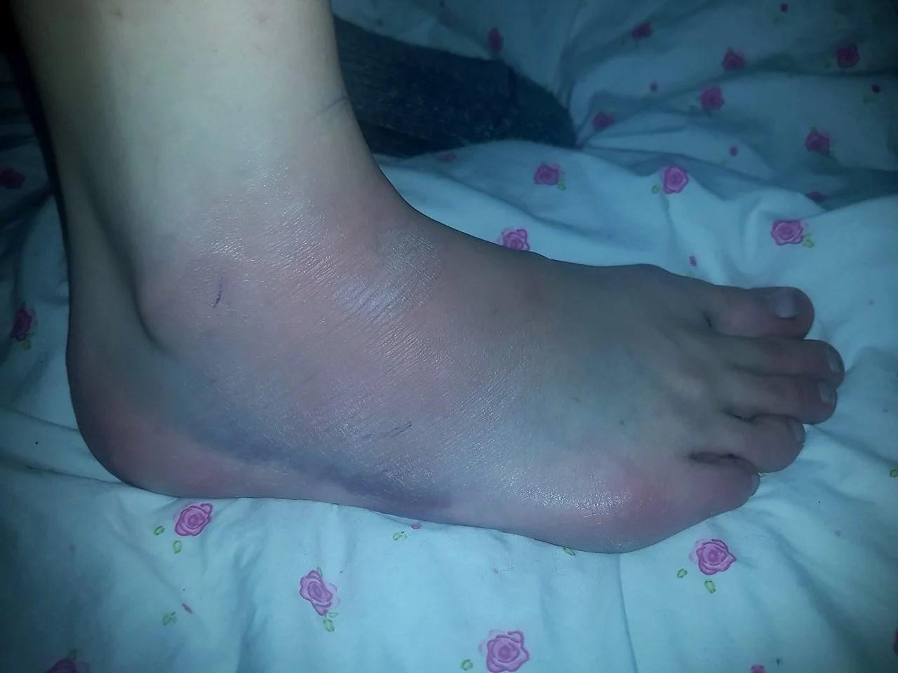 En blå fot.