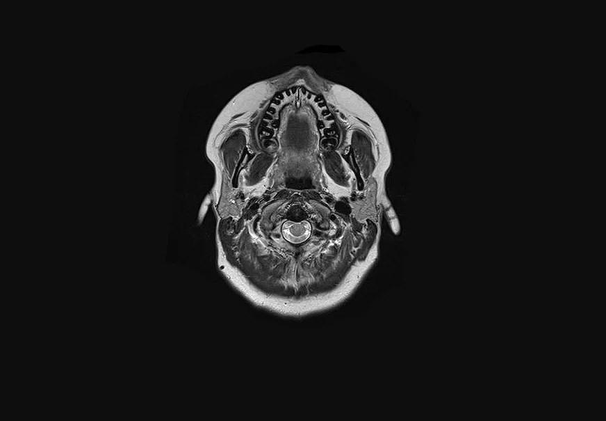 Resultaten från magnetröntgen