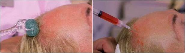 Lösningen för er med håravfall