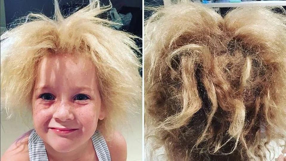 En ovanlig håråkomma – uncombable hair syndrome