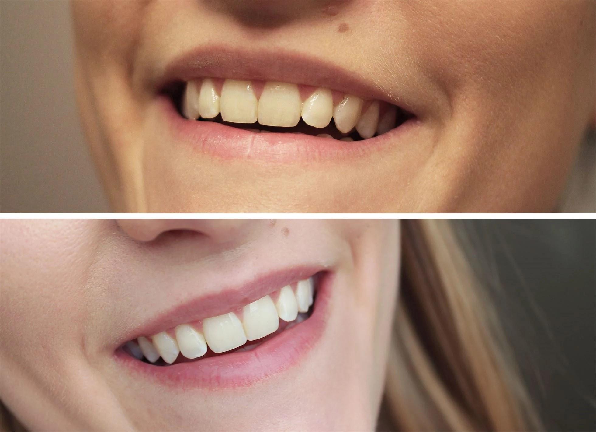 teeth-yellow-white-2
