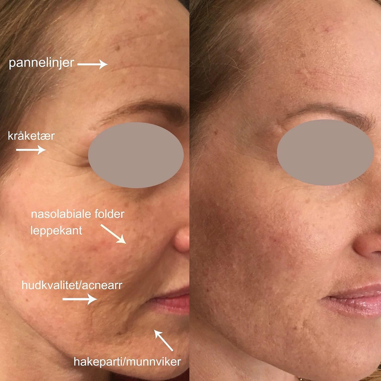 Hudforbedring med Restylane skinbooster